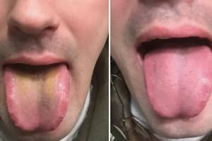 A tongue before and after cleaning