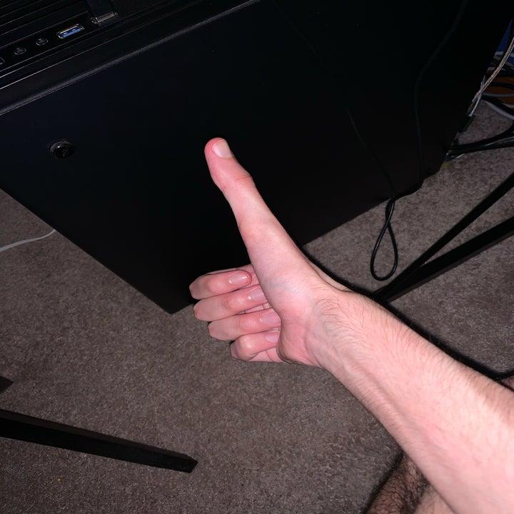 Photo of Jacob's thumb