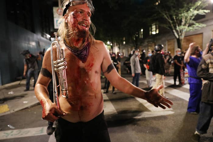 A protester with blood on their face and body, goggles on their forehead, and holding a trumpet stands in the busy street
