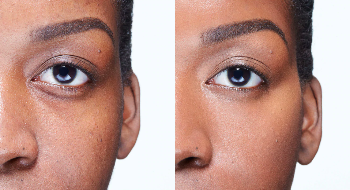 A before and after of a model using the product and their under eye looking more even toned