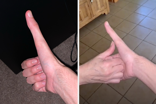 This Guys Super-Long Thumb Has Gone Mega Viral And Its 100% Real