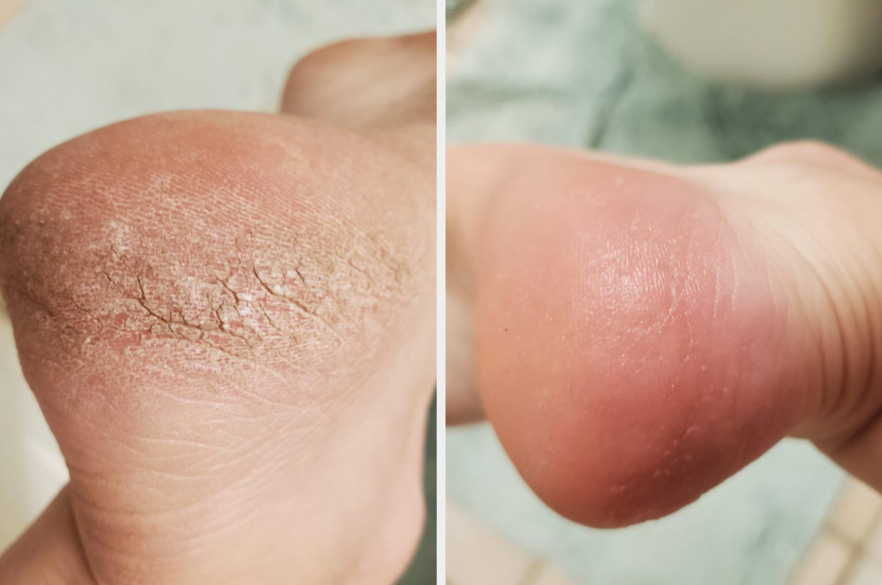 Before image of a cracked foot with an after image of the skin smooth