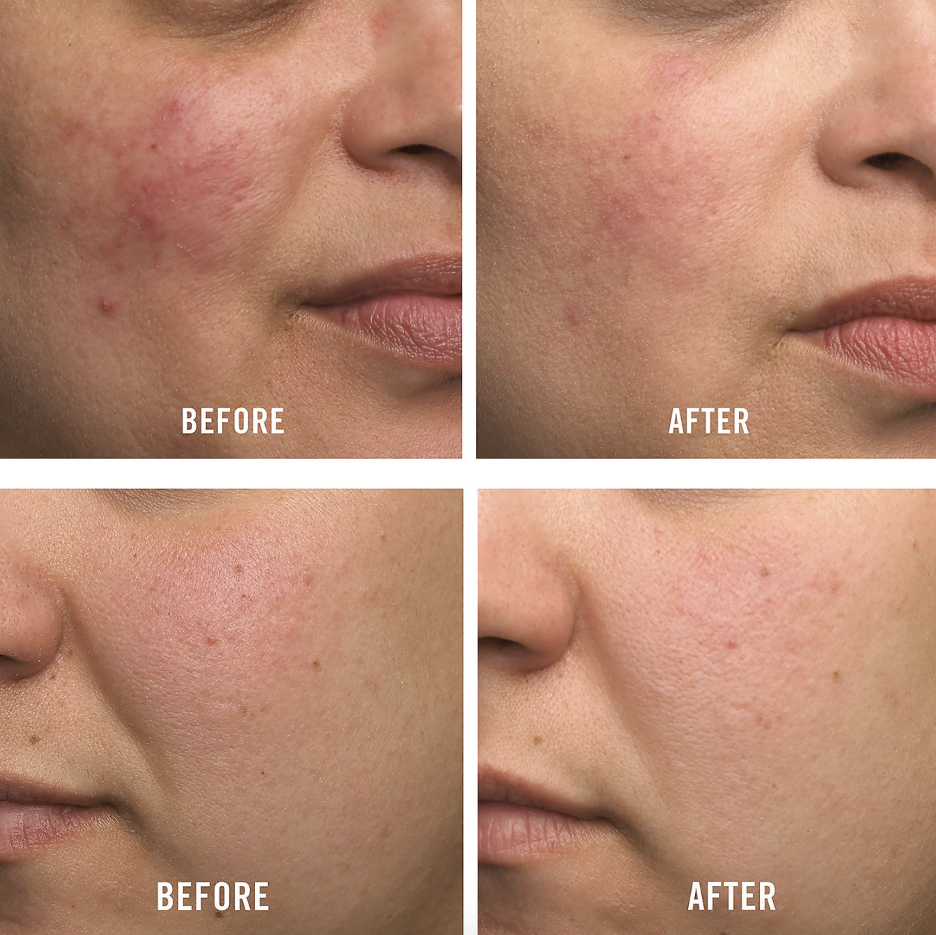 two before and afters, showing red inflamed skin first, then noticeably calmer, less red skin after product use
