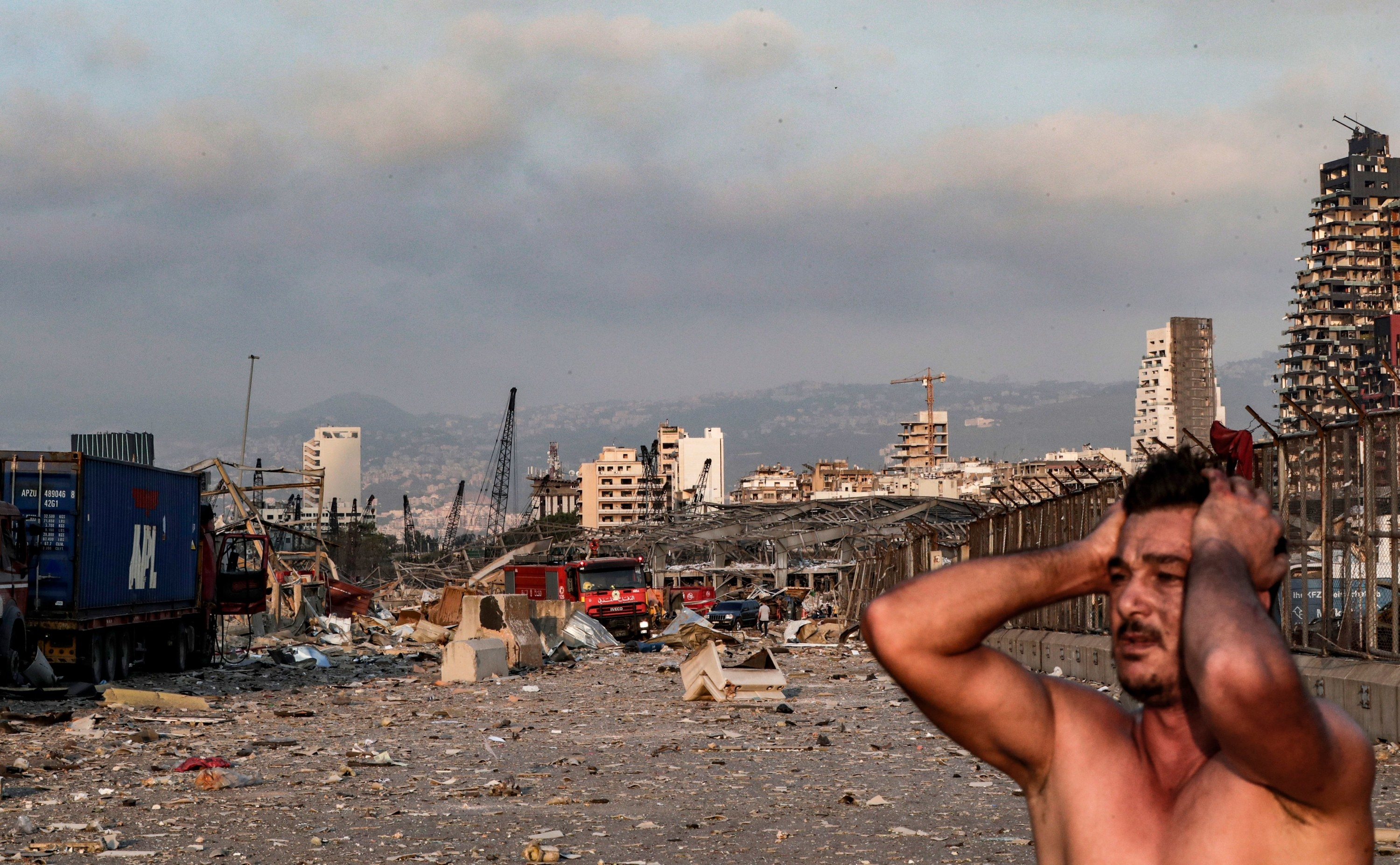 A shirtless man puts his hands on his head amid a field of debris
