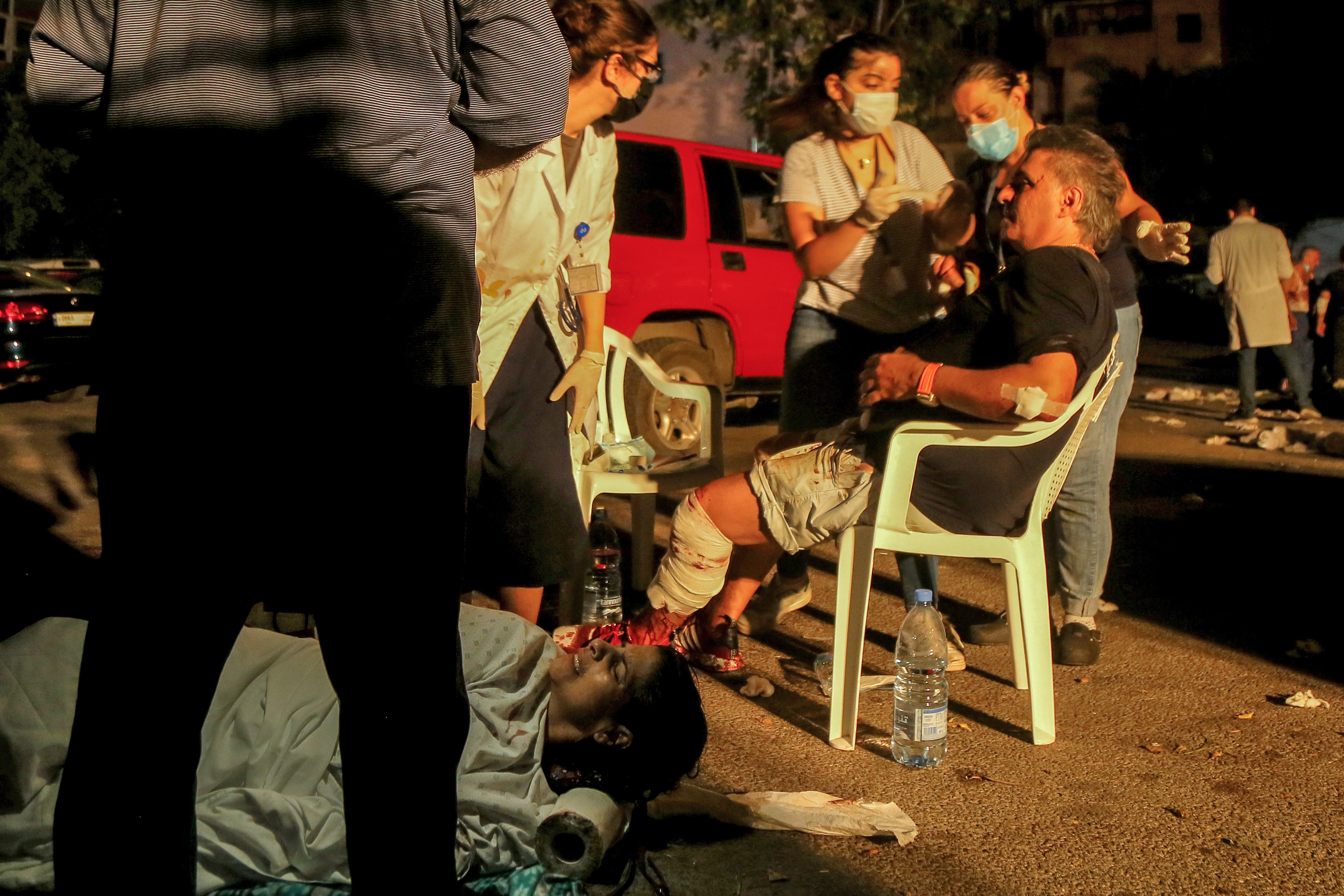 An injured woman lies on the ground and a man with a leg injury sits behind her outside the hospital while a doctor talks to them