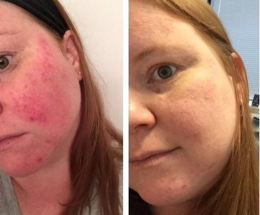 Reviewer's before-and-after of red complexion and then matte and clear complexion