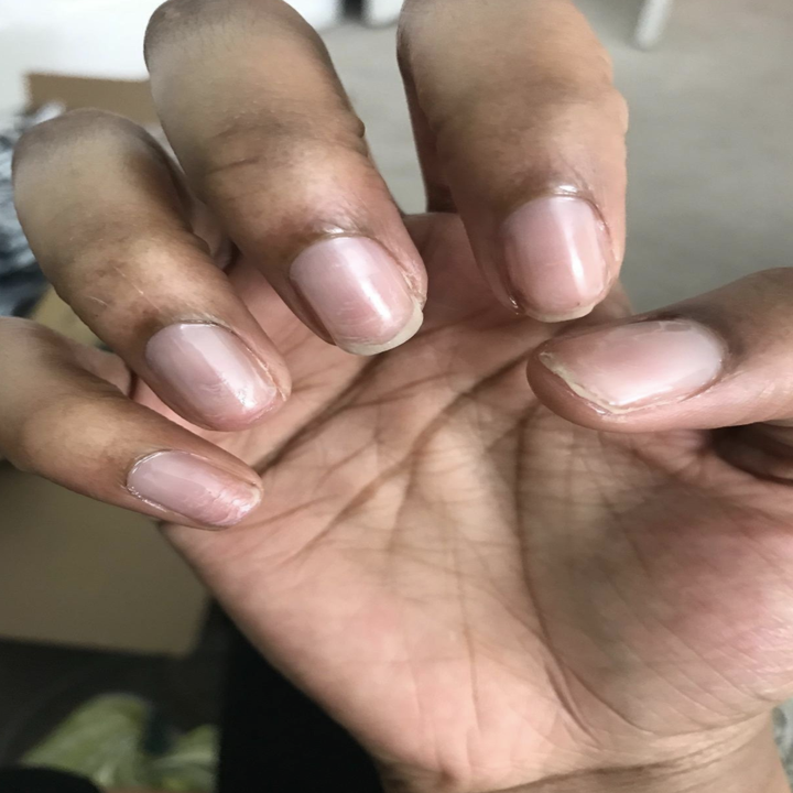Reviewer's before photo showing short, damaged nails