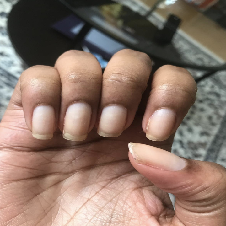 Same reviewer's after photo showing noticeably longer and healthy looking nails