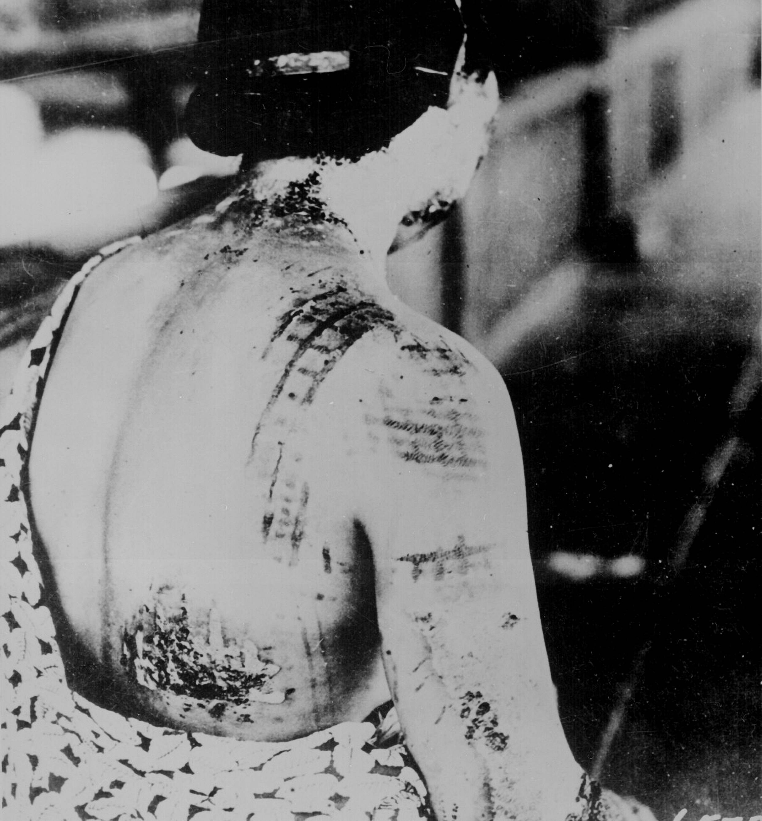 A woman reveals severe burns in gridlike patterns on her back caused by radiation