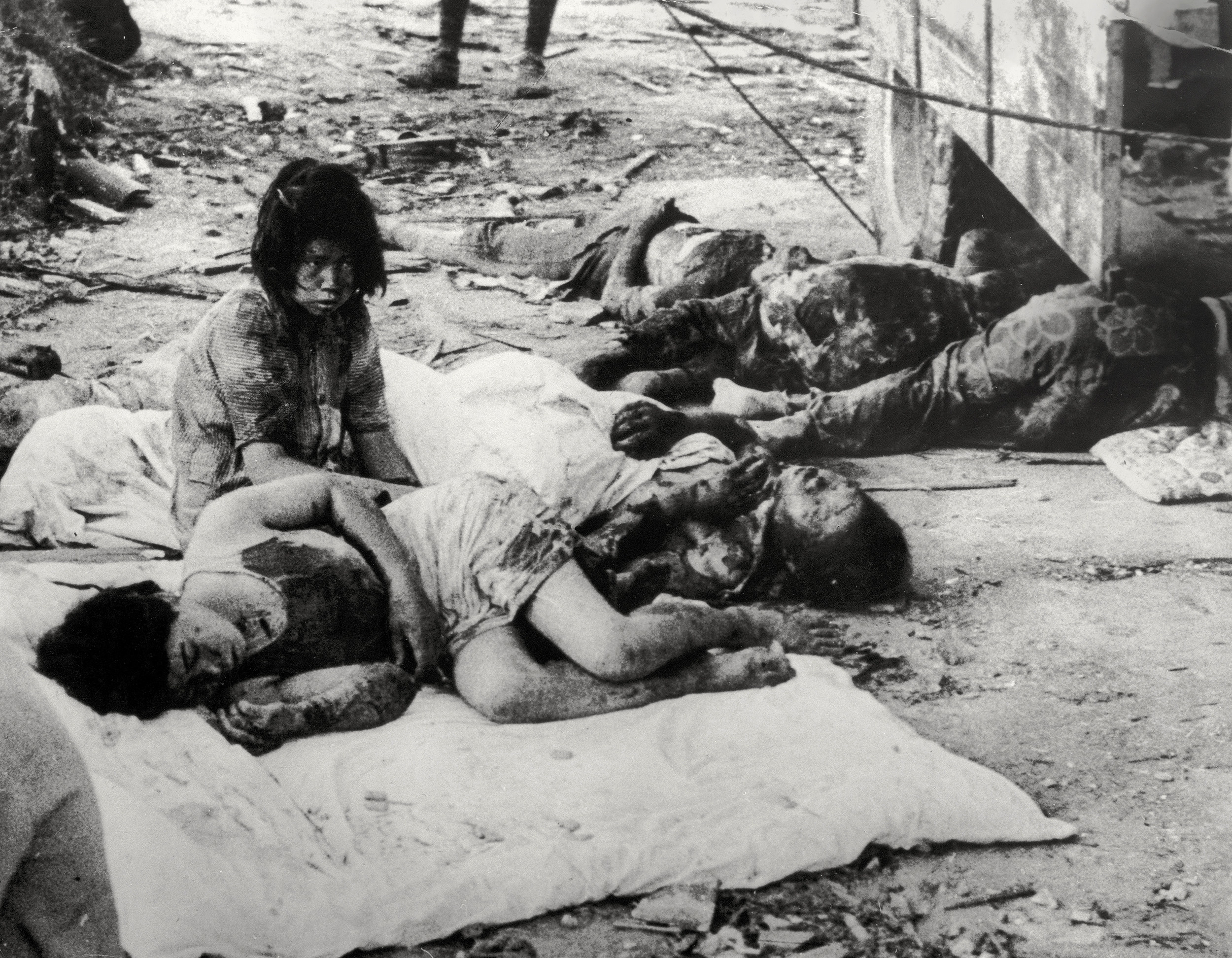 A young girl sits by four badly burned and bloodied women lying down on the ground