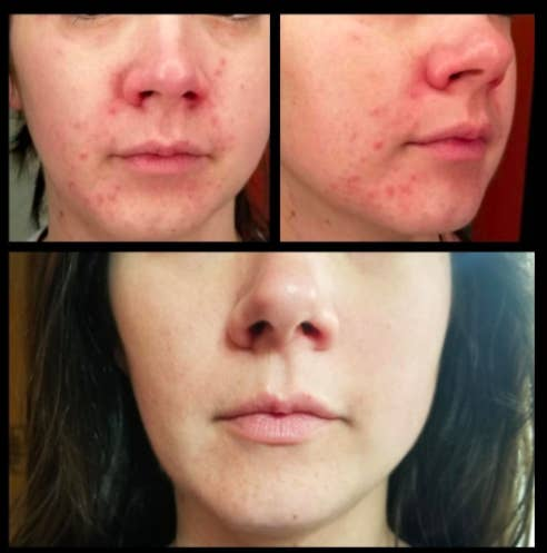 Reviewer before-and-after photos showing red skin and acne around their nose and mouth, with the same area being significantly cleared up after using the Differin Acne Treatment Gel