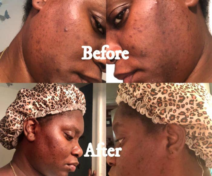 Reviewer before-and-after photos showing skin clearer and dark spots fading after using The Ordinary Niacinamide serum