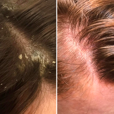 Reviewer with large flakes of dandruff and concentrated patch of dry skin on scalp before and a clean, dandruff-free image in the same spot after use