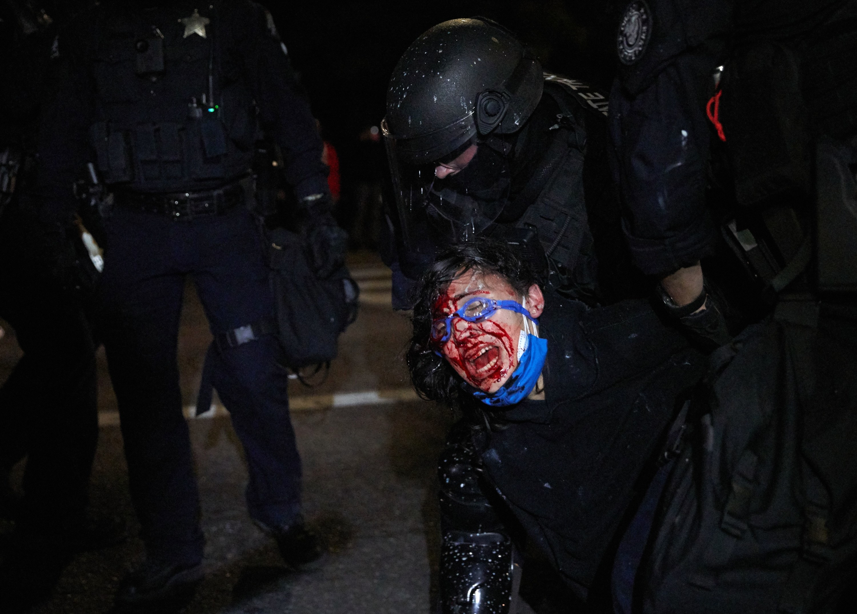 A protester wearing blue goggles shouts and bleeds from the face as a police officer clad in black holds them down