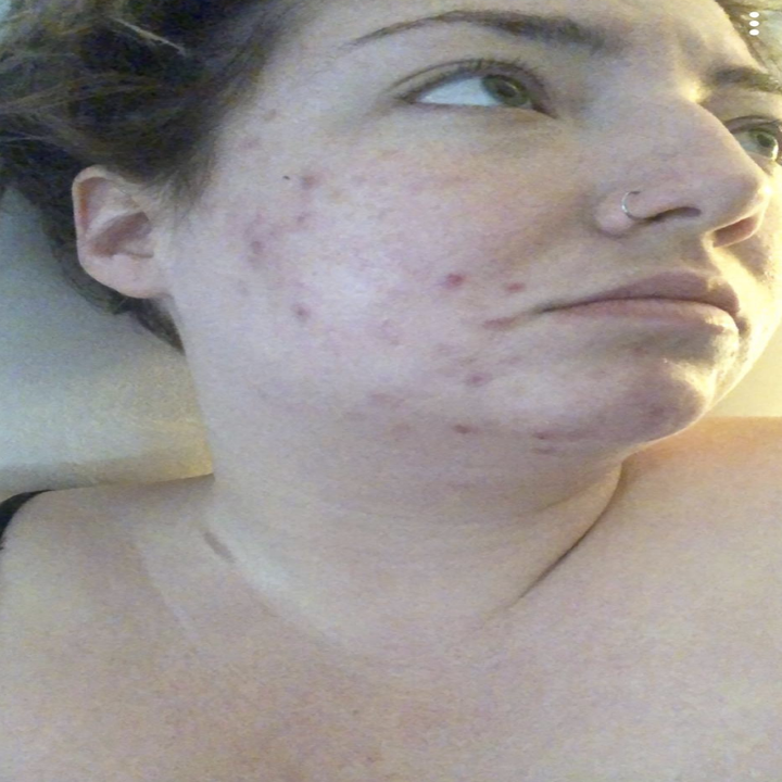 reviewer with visible redness and acne