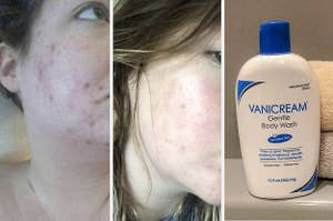 on the left, reviewer with visible acne; in middle, same reviewer with visibly less acne; on right, Vanicream body wash