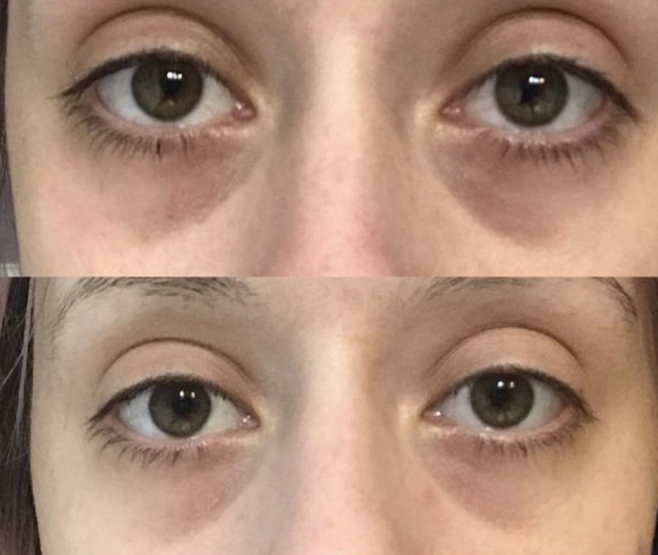 reviewer before photo of visible dark circles and after photo of visibly less dark circles