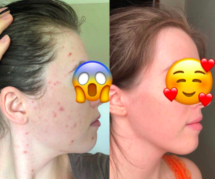 Reviewer before-and-after photos showing face completely clear of acne after using Stridex pads