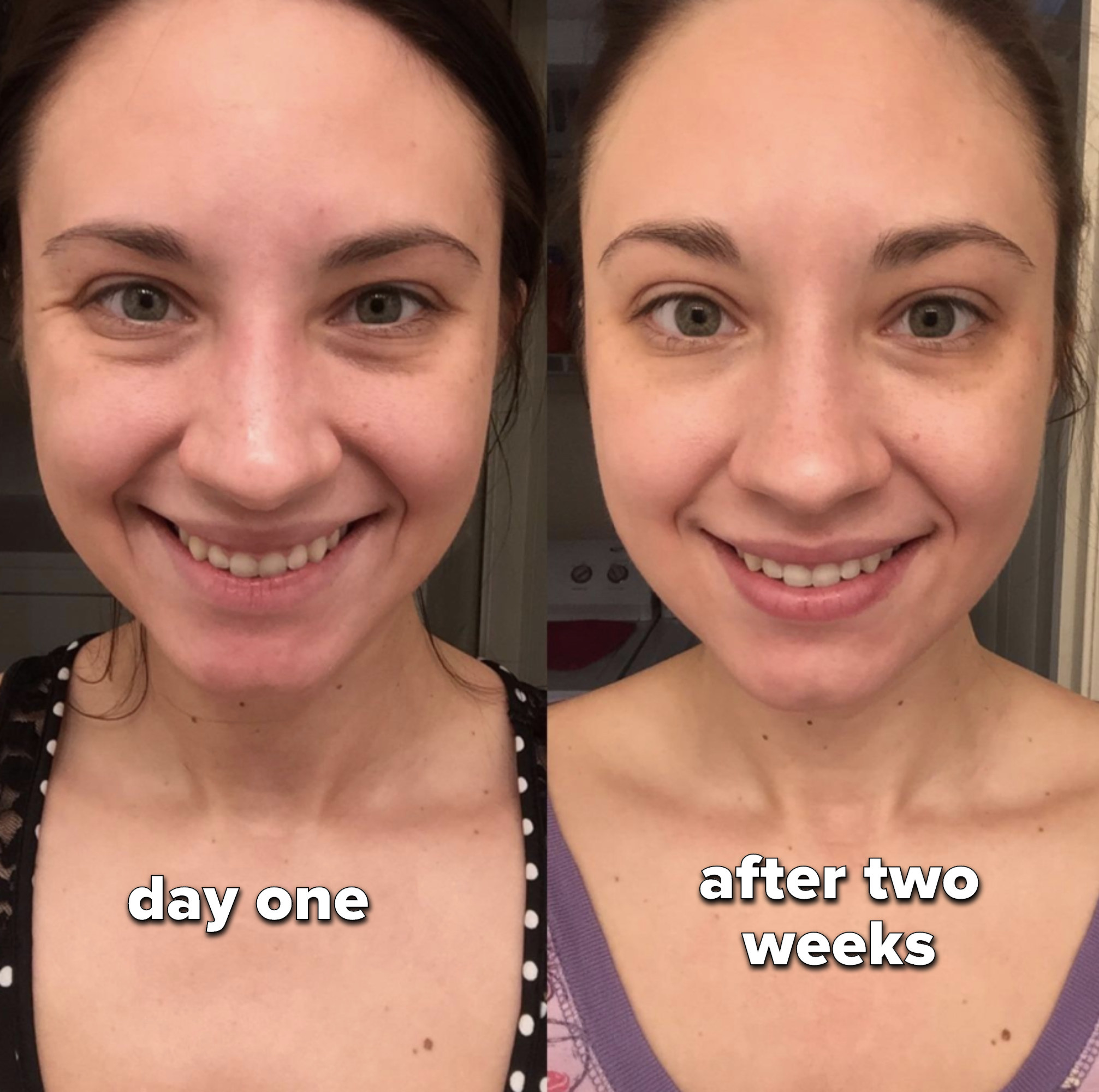 Reviewer image of day one face and their face after two weeks, with more of an even tone and refresh