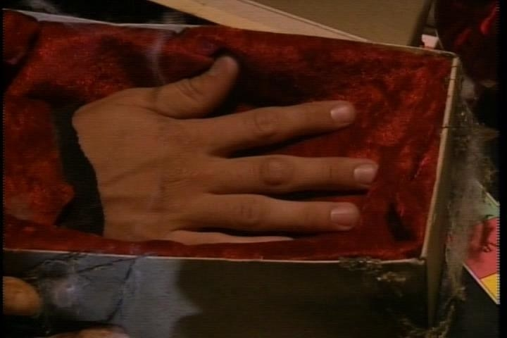 a severed hand in a box