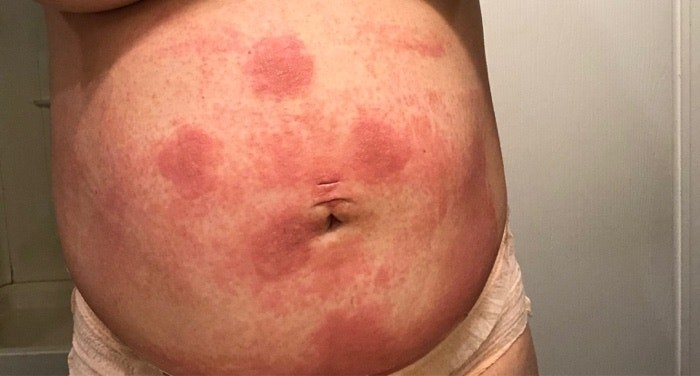 Photo of red, swollen stomach.