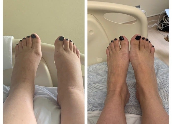 Photo of mom with swollen feet before and after.