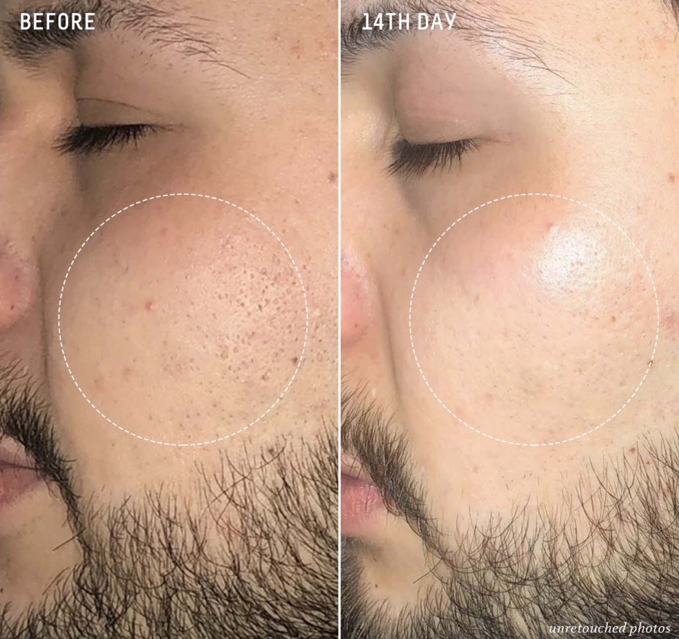 Before-and-after of a customer's visible pores and uneven skin tone compared to hardly visible pores, much smoother and brighter skin, and more even tone