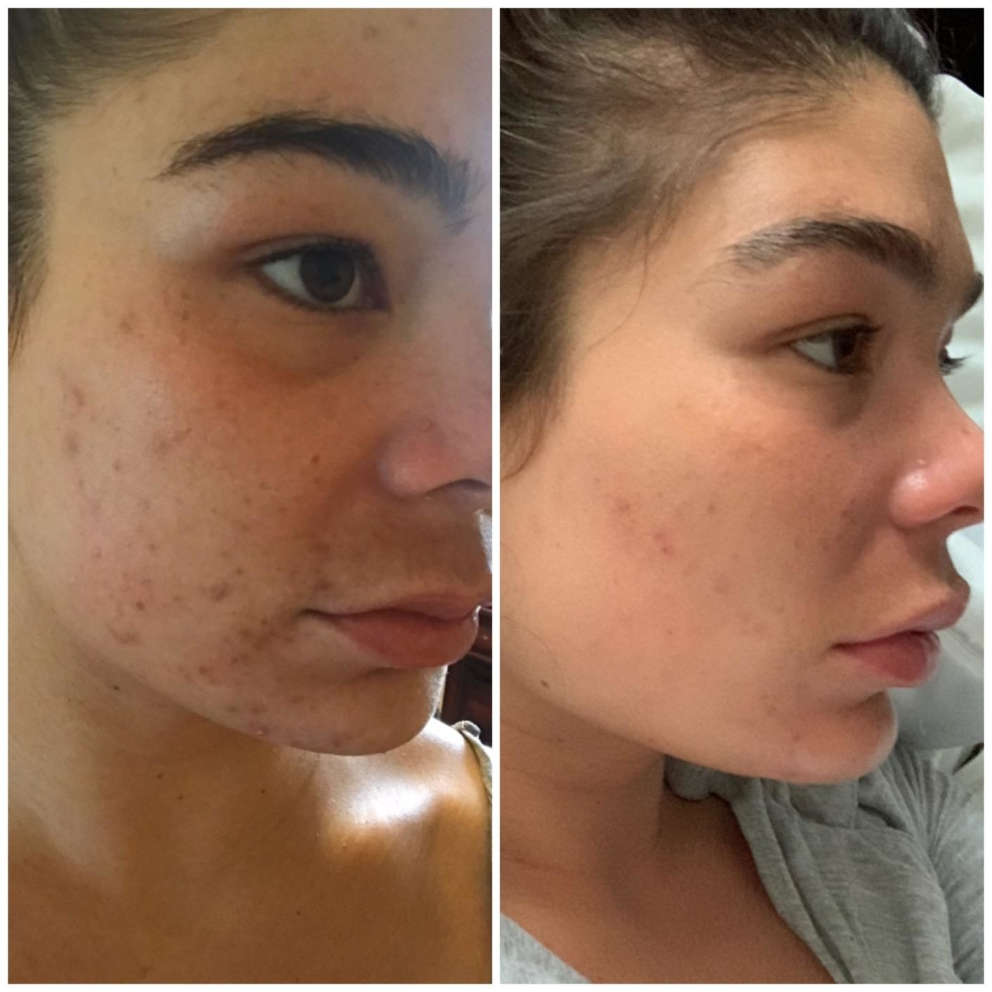 Before and after of a reviewer with patches of dark acne and scars on her cheek showing the mask dramatically reduced hyperpigmentation and helped get rid of breakouts