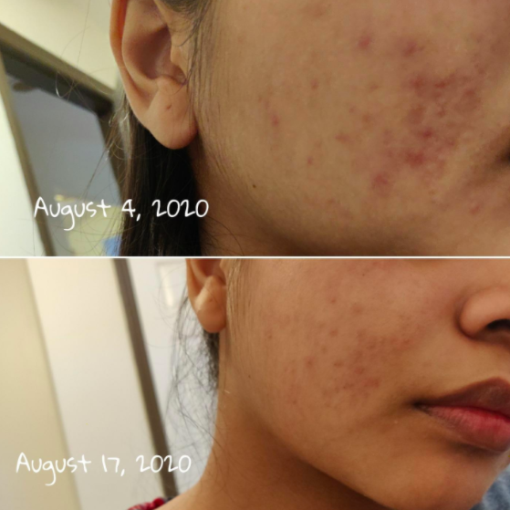 Reviewer photo showing their acne noticeably clearer after just two weeks of using the La Roche-Posay 3-step treatment