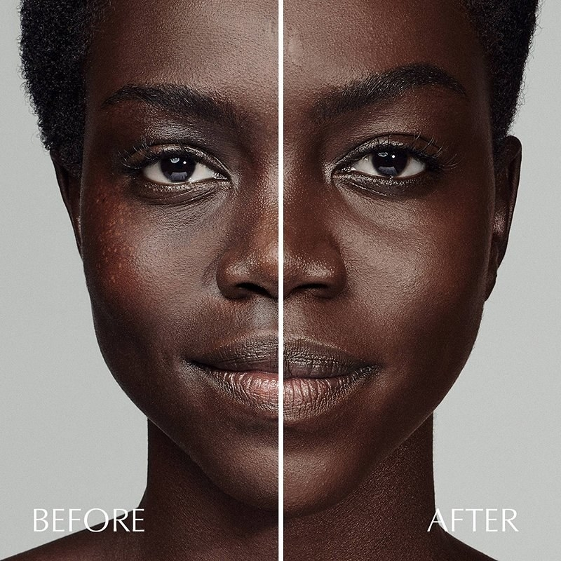 A model with skin imperfections / Same model with even skin