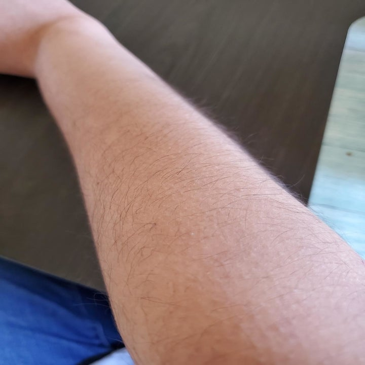 reviewer with hairy arm