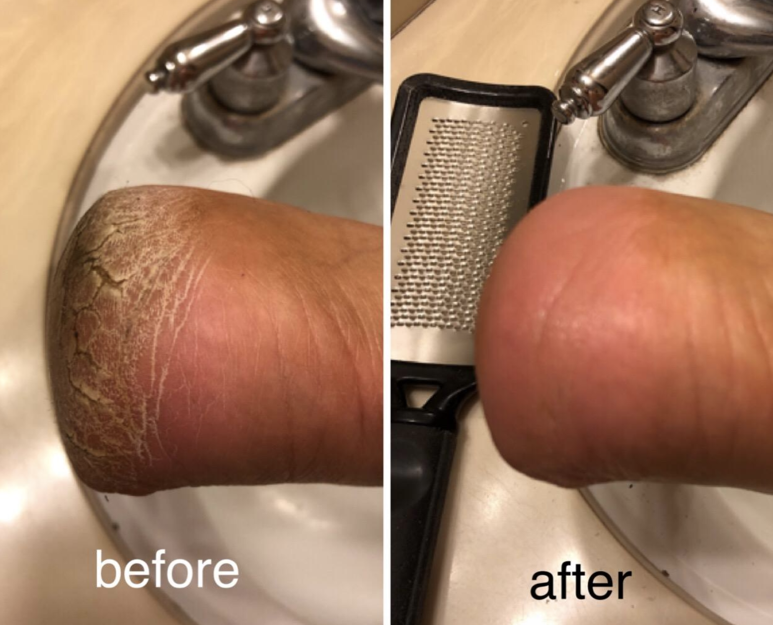 Before and after pic of a reviewers heels. The before has cracked dry feet and the after photo shows smooth, crack-free skin.