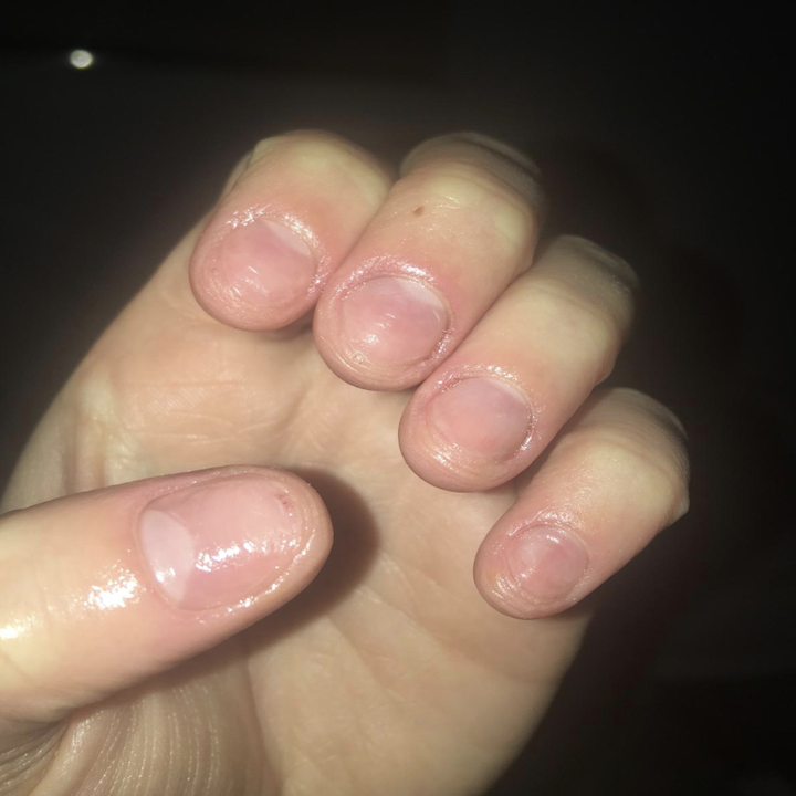 Reviewer's before image of short, brittled nails