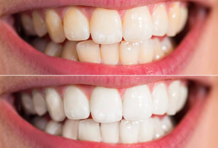 On the top, a reviewer's teeth looking a little yellow, and on the bottom, the same reviewer's teeth looking whiter just a week later