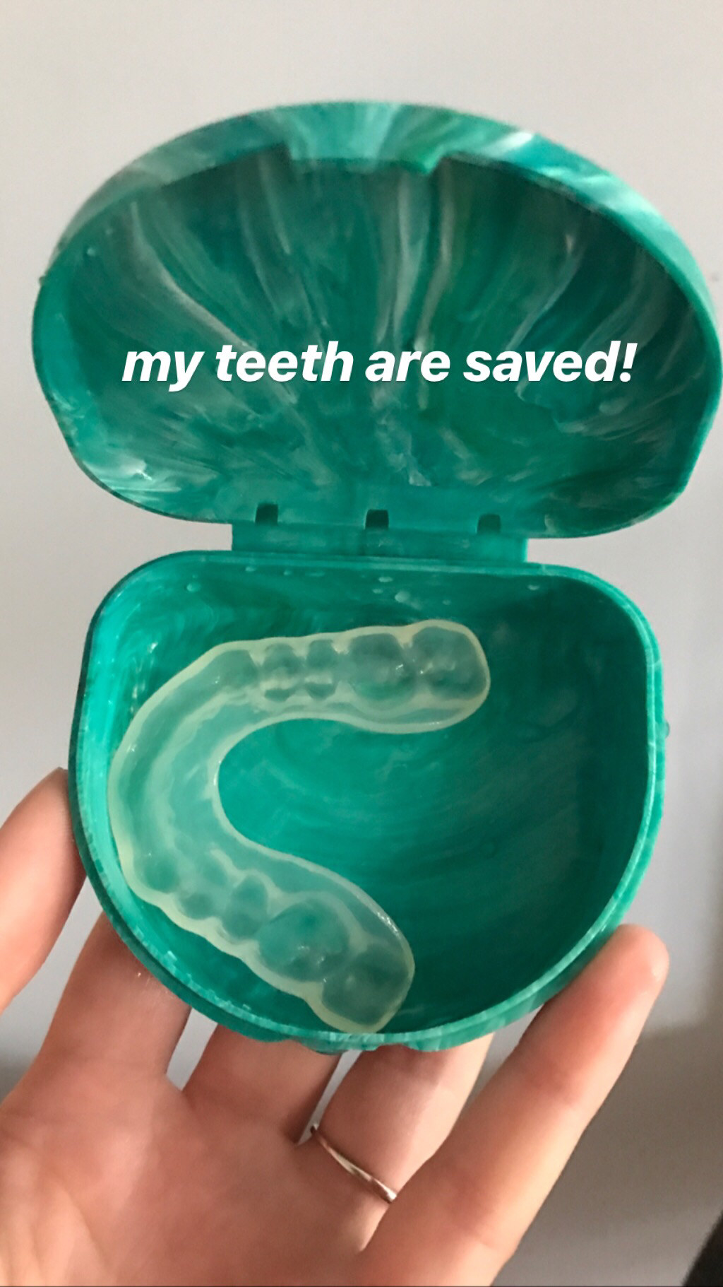 """my hand holding a night guard with caption """"my teeth are saved"""""""