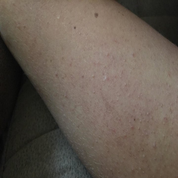 reviewer's dry, coarse skin