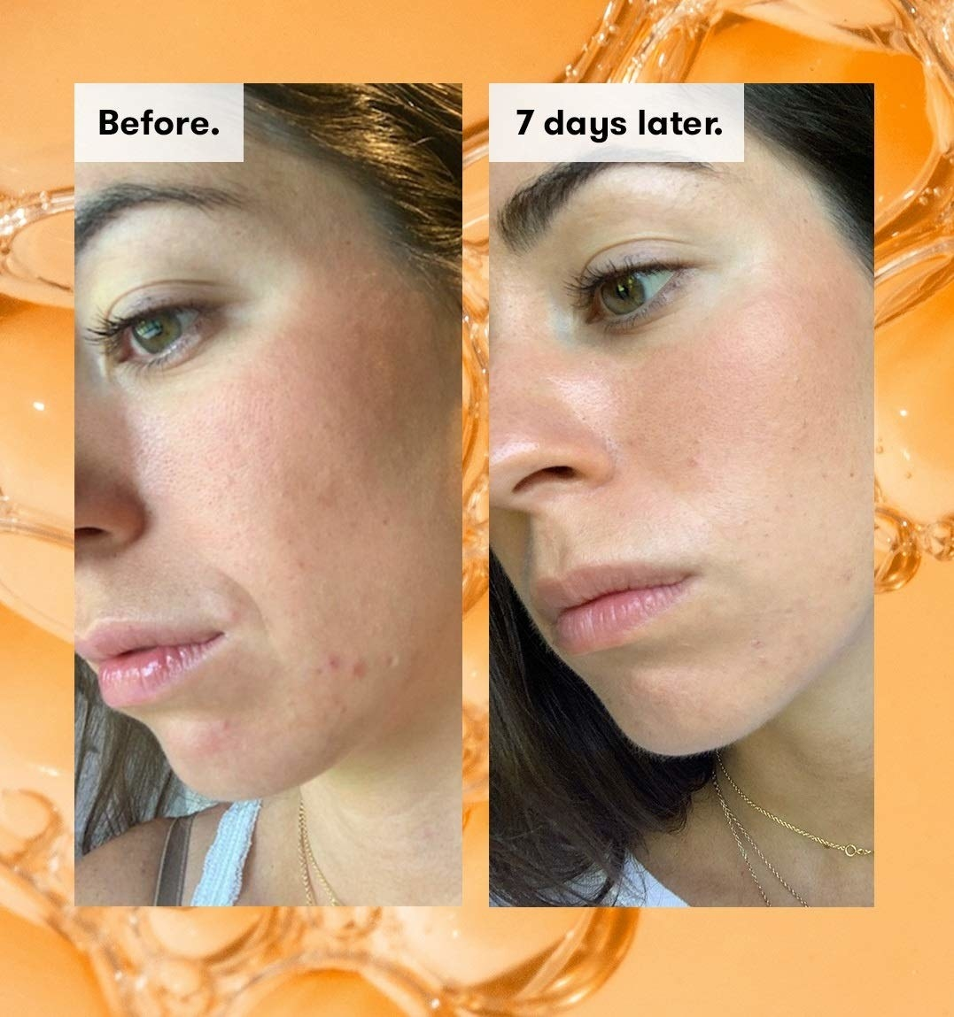 before and after photo of model with visible texture on the left and visibly less texture on the right