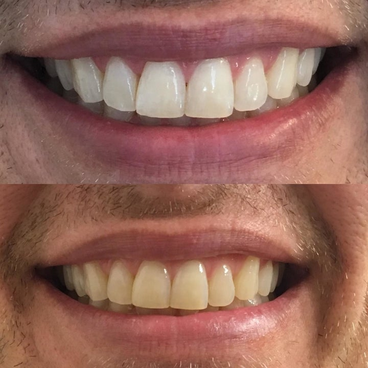 Reviewer before and after showing the strips significantly whitened their yellow teeth