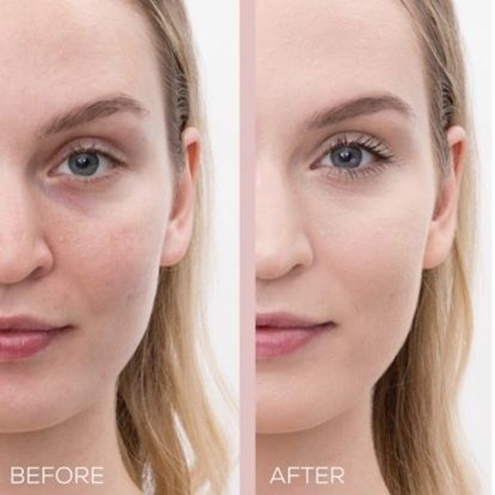 A bare-faced model with slight blemishes // The same model with even skin wearing the foundation