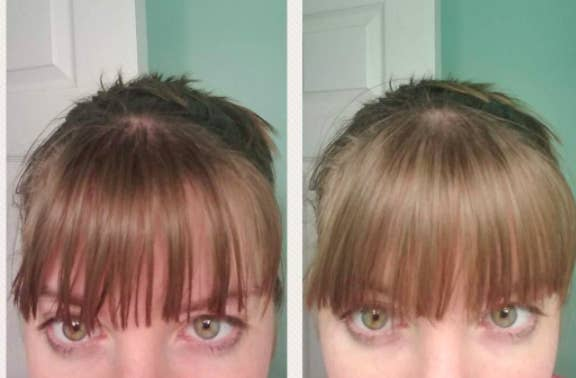reviewer before-and-after showing their bangs noticeably less greasy after using dry shampoo