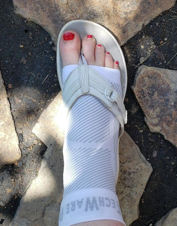 Reviewer wearing the braces with sandals