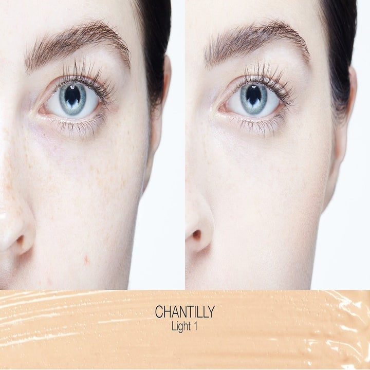 before and after photo of model with dark circles on left and no visible dark circles on right