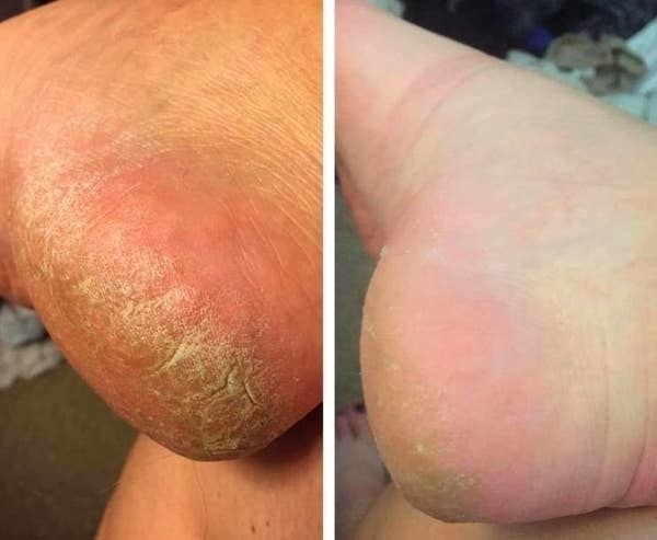 A reviewer showing their cracked feet now looking softer and smoother after using the sleeves