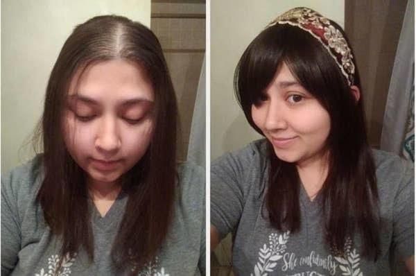 On the left, a reviewer showing their hair thinning at the top, and on the right, showing how much fuller it looks after putting in the clip-on bangs