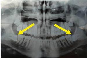 Wisdom teeth coming in impacted.