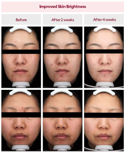 a before and after of two people, showing stages of the results; both with dull, acne-ridden skin before, and then slowly getting brighter and more hydrated after two, then four weeks