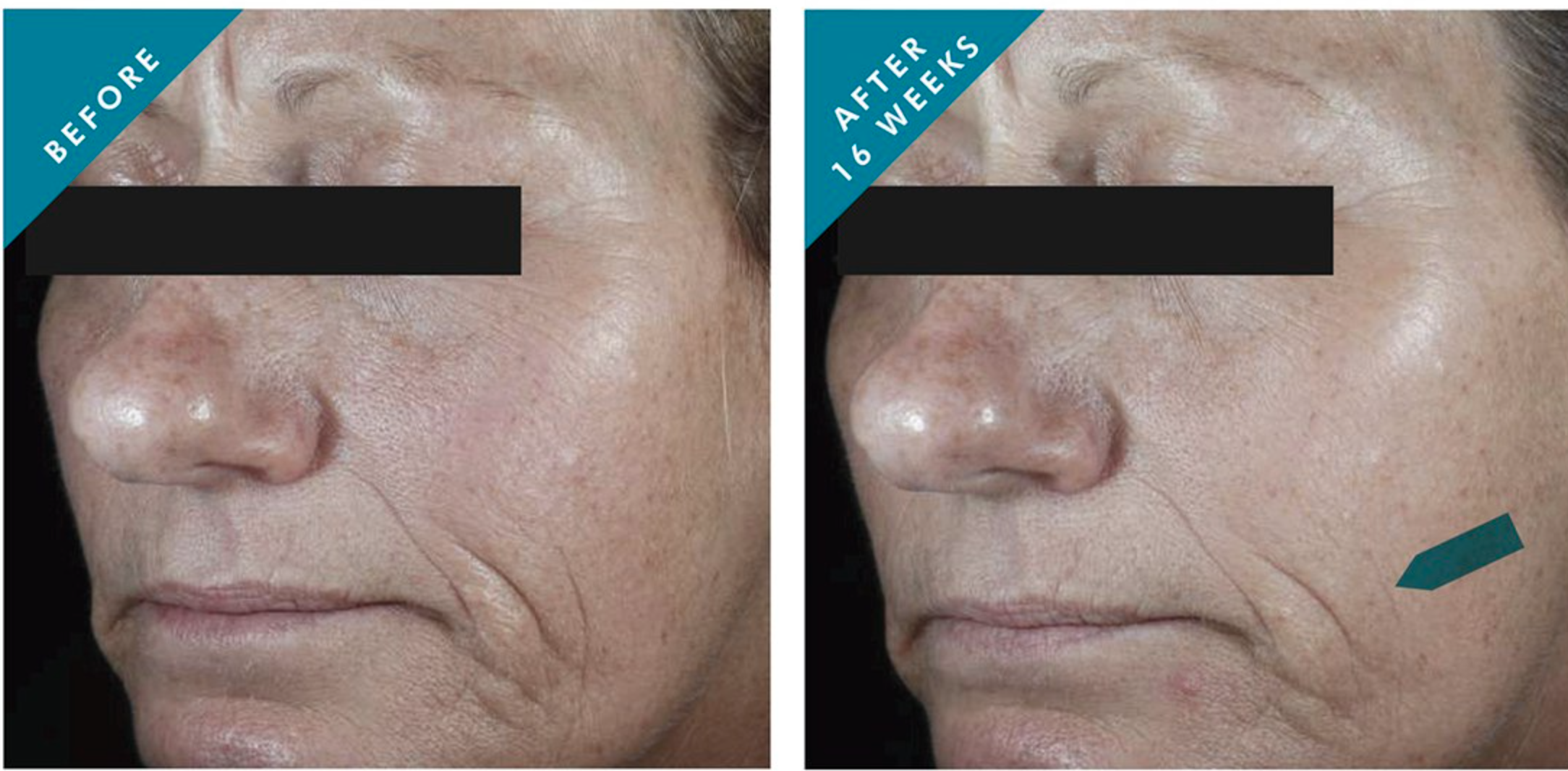 before and after of a person with deep mouth wrinkles before use, and diminished wrinkles after use