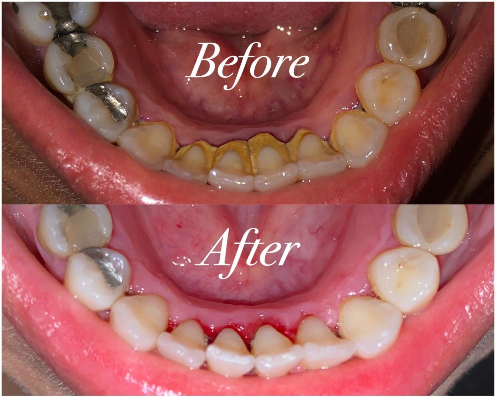 Reviewer before and after showing it removed large chunks of plaque that were on the inside of their teeth