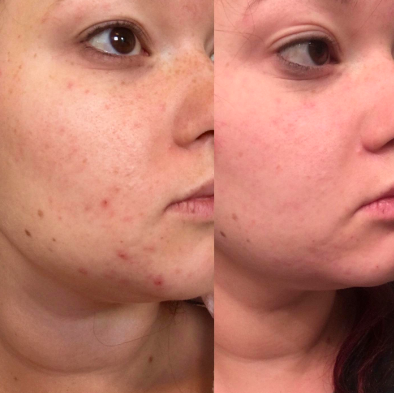 Reviewer with several small red breakouts around face before with considerably less redness and irritation after use
