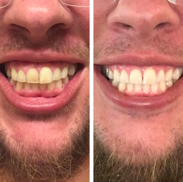 Person with dull, plaque-covered teeth that look clean and white after use